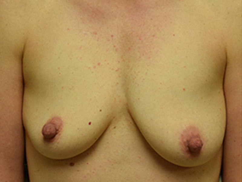 Seattle Breast Augmentation patient Before
