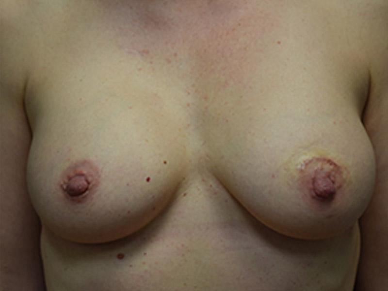 Seattle Breast Augmentation Results