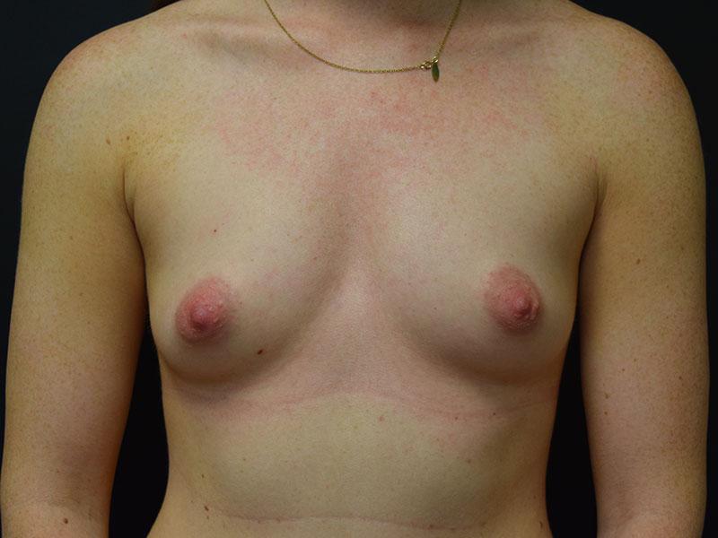 before Breast Augmentation Surgery in Seattle