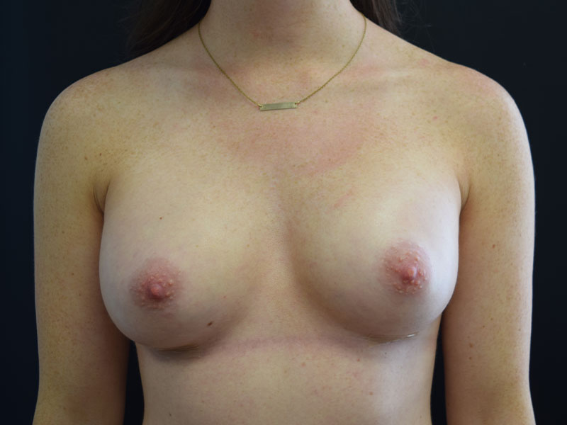 After Seattle Breast Implants