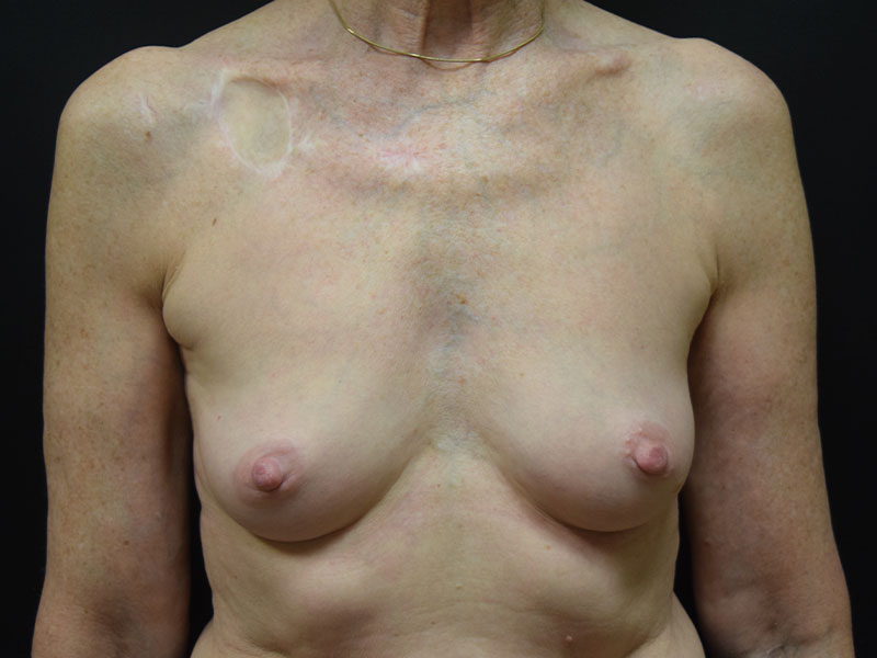 Seattle Breast reconstruction before