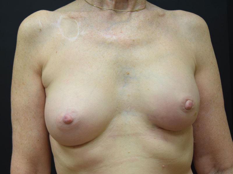 Seattle Breast reconstruction after