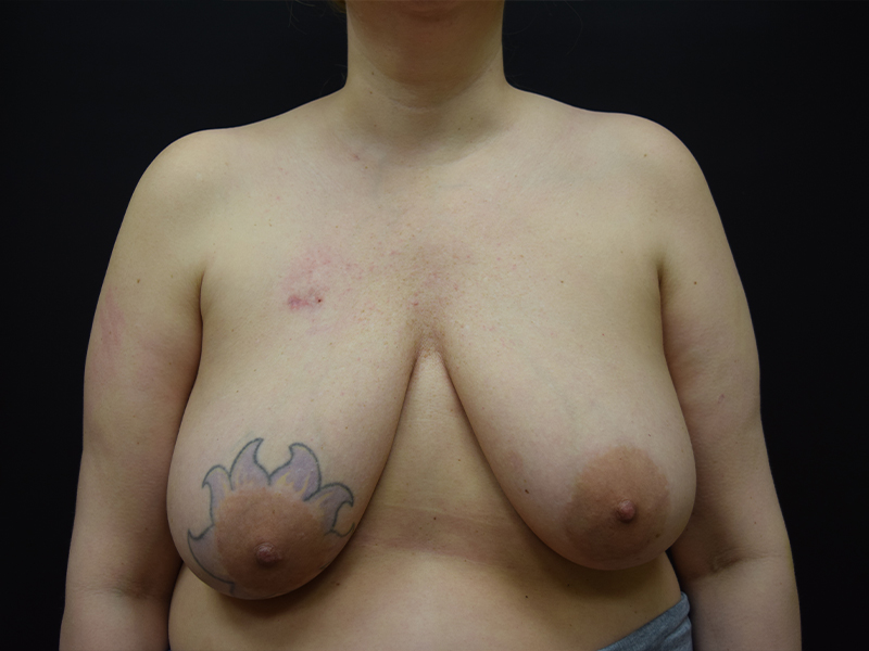 Before of Seattle breast reconstruction patient