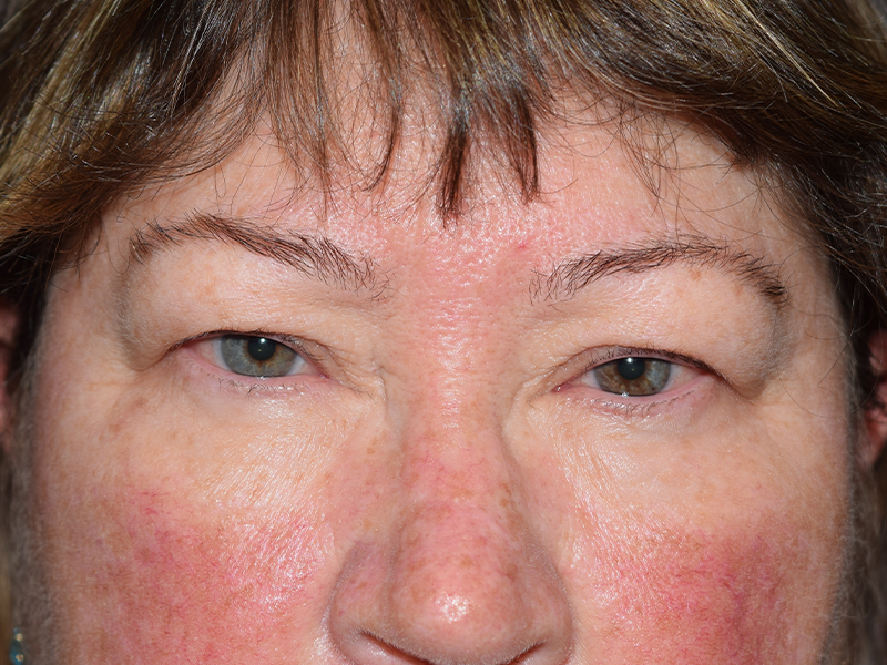Before Eyelid Surgery in Seattle