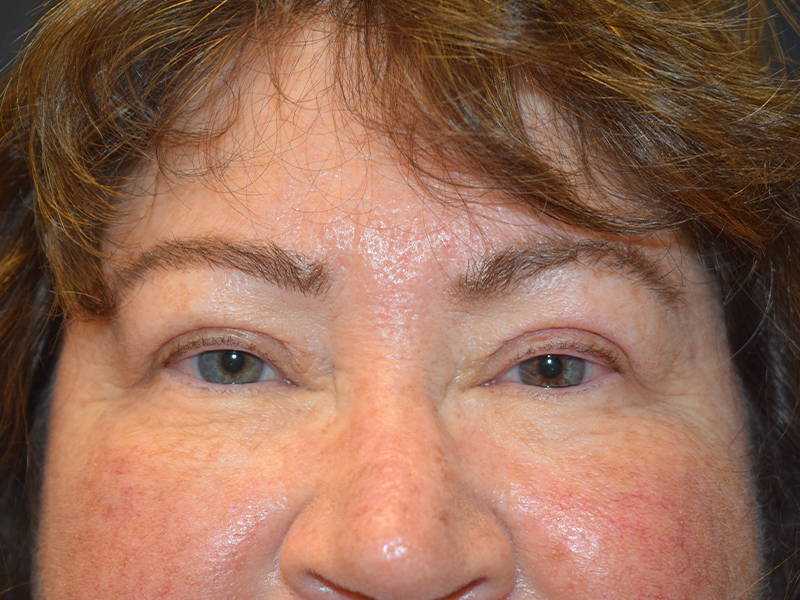 Seattle Eyelid Surgery Before And After