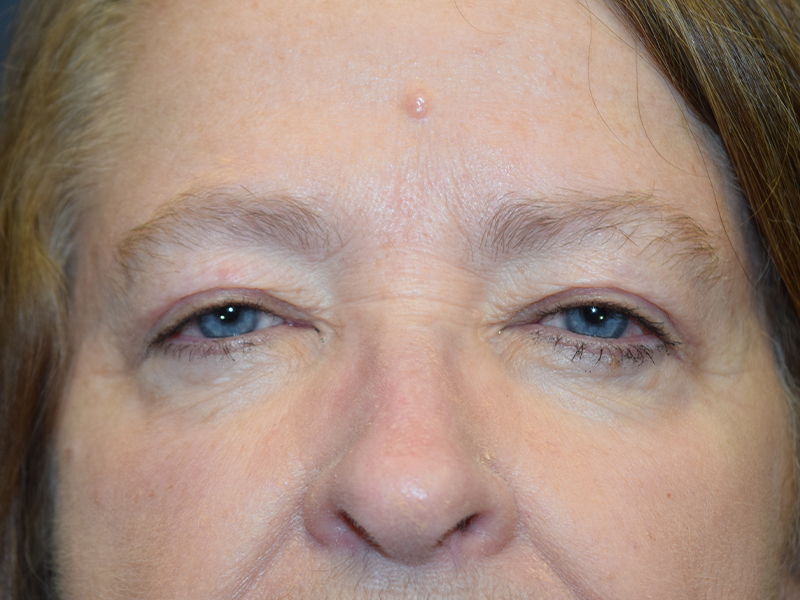 Blepharoplasty Before & After Photos